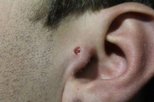 Piercing Tragus 2