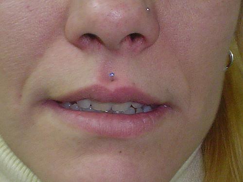 Piercing medusa en labio superior 2